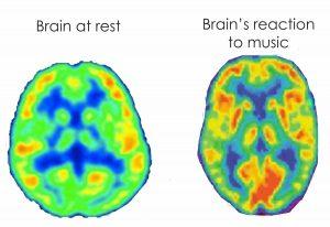 MRI Brain Test